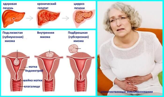 Болезни печени, миомы матки и злокачественные образования причиняют дискомфорт в заднем проходе
