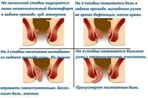 Геморрой при беременности