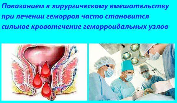 Кровотечение геморроя является показанием к проведению операции