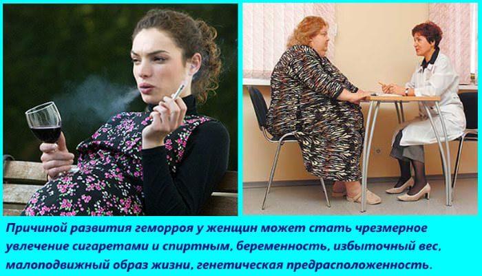 Причиной развития геморроя у женщин является ожирение, увлечение спиртными напитками и сигаретами