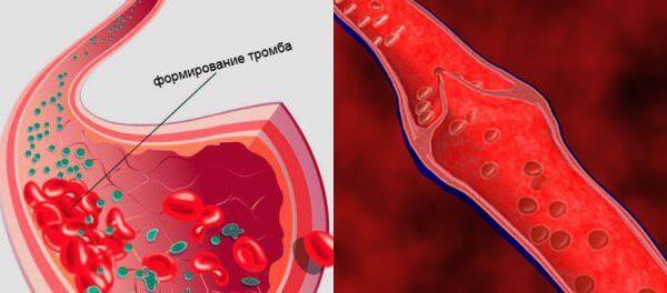Состав Флебодиа разбивает тромбы и уменьшает свертывание крови