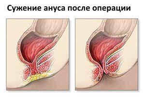 Одно из возможных осложнений после операции - сужение ануса