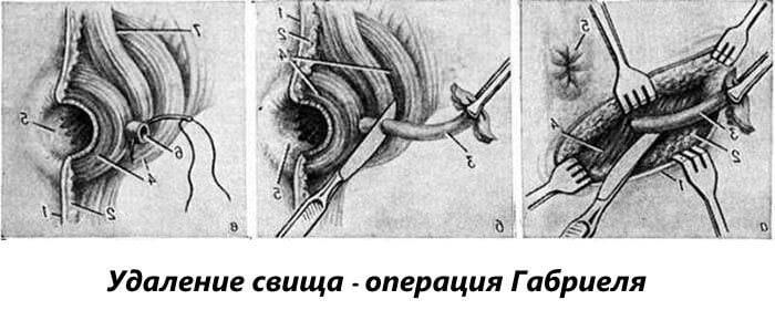 Операция Габриеля по удалению свища