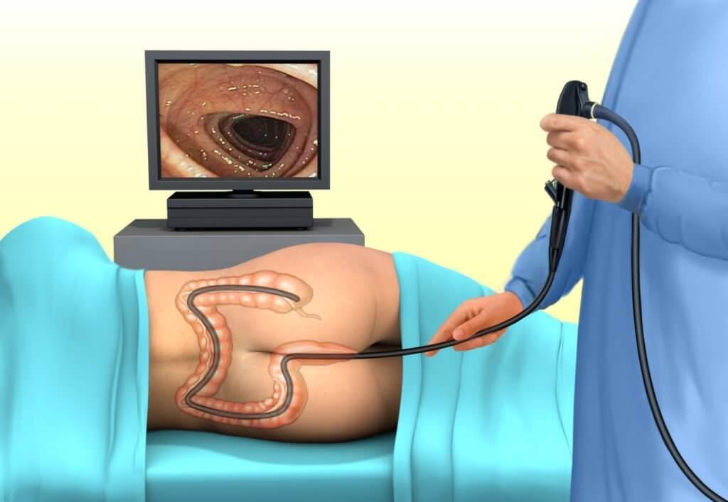 Анальный осмотр у гинеколога