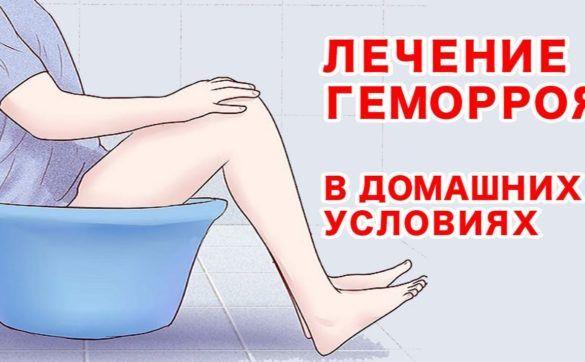 Лечение геморроя в домашних мужиках