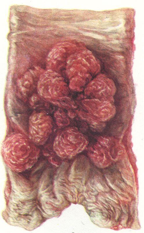 Ворсинчатая опухоль